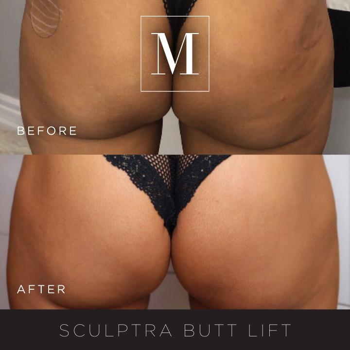 SCULPTRA_Butt-BA6.jpg