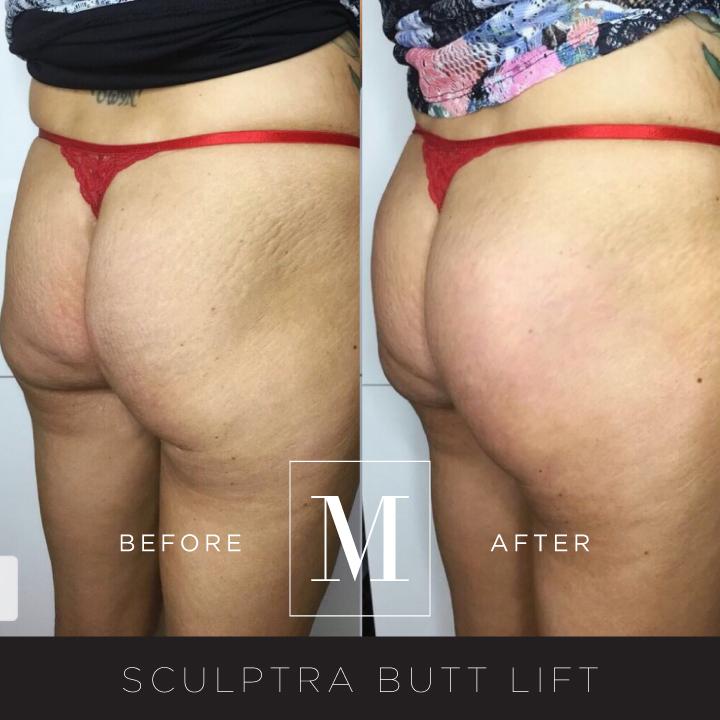 SCULPTRA_Butt-BA7.jpg