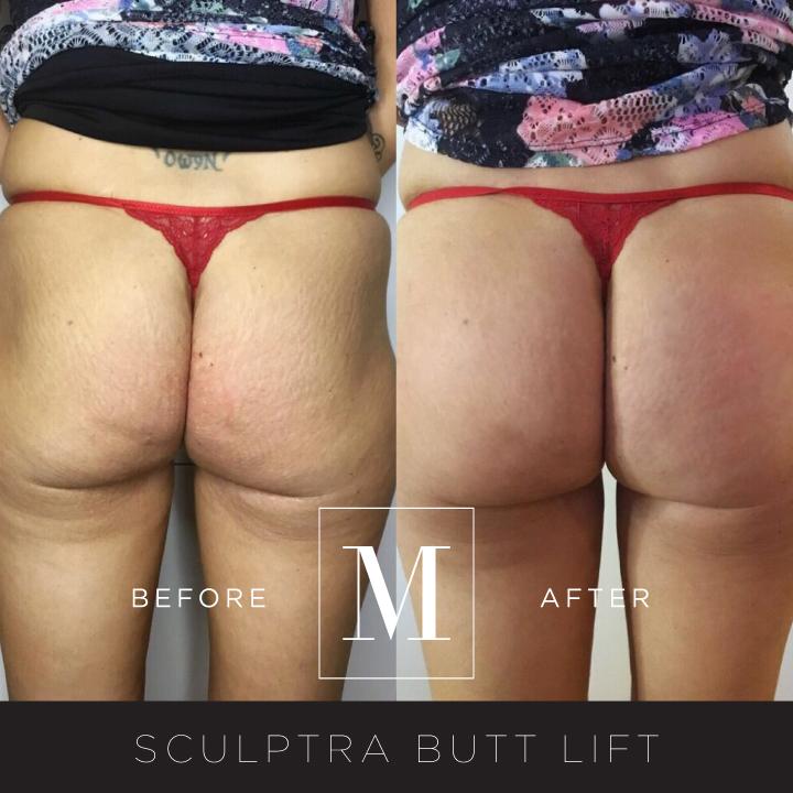 SCULPTRA_Butt-BA8.jpg