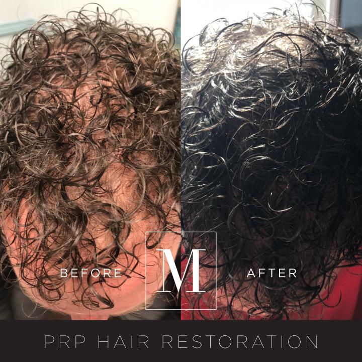 PRP_Hair-BA1.jpg