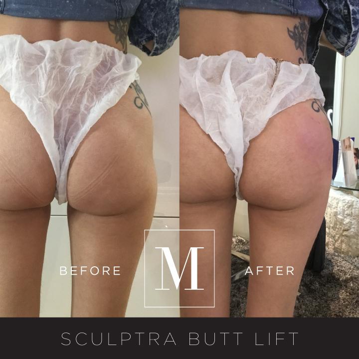 SCULPTRA_Butt-BA10.jpg