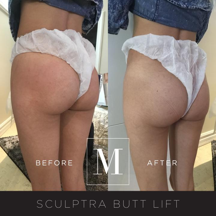 SCULPTRA_Butt-BA9.jpg
