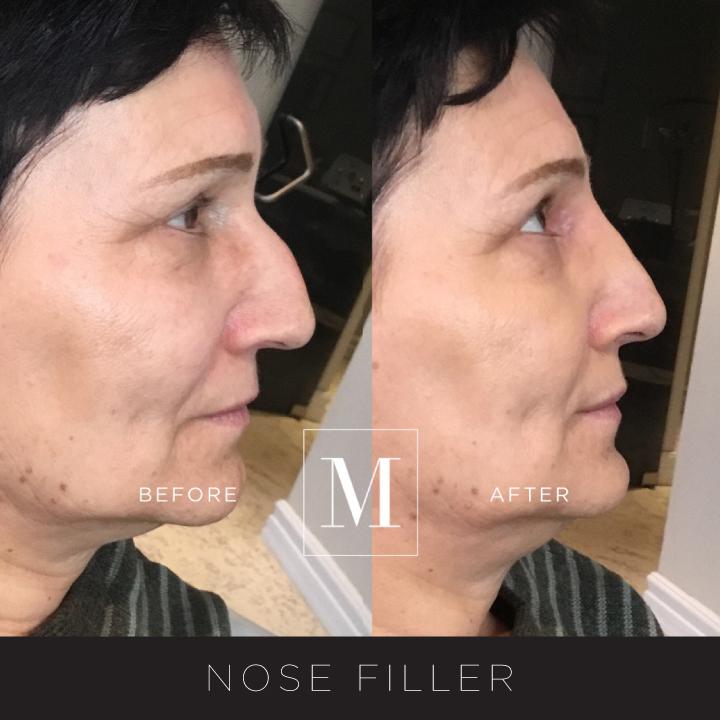 NoseFiller-BA3.jpg