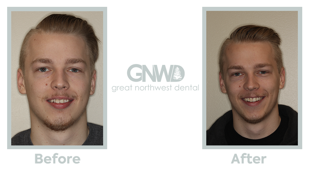 Invisalign B&A1 - great northwest.png