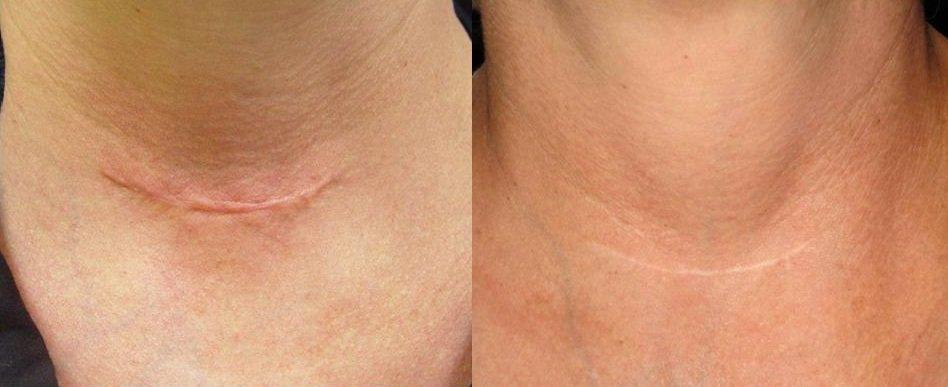 laser scar