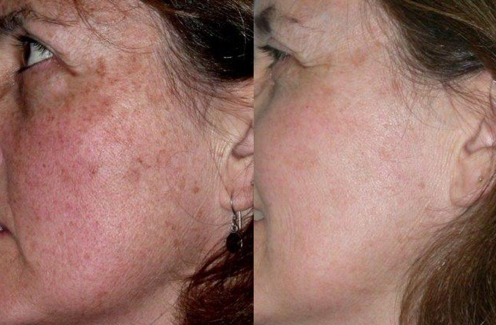 Pigmentation/Age spots
