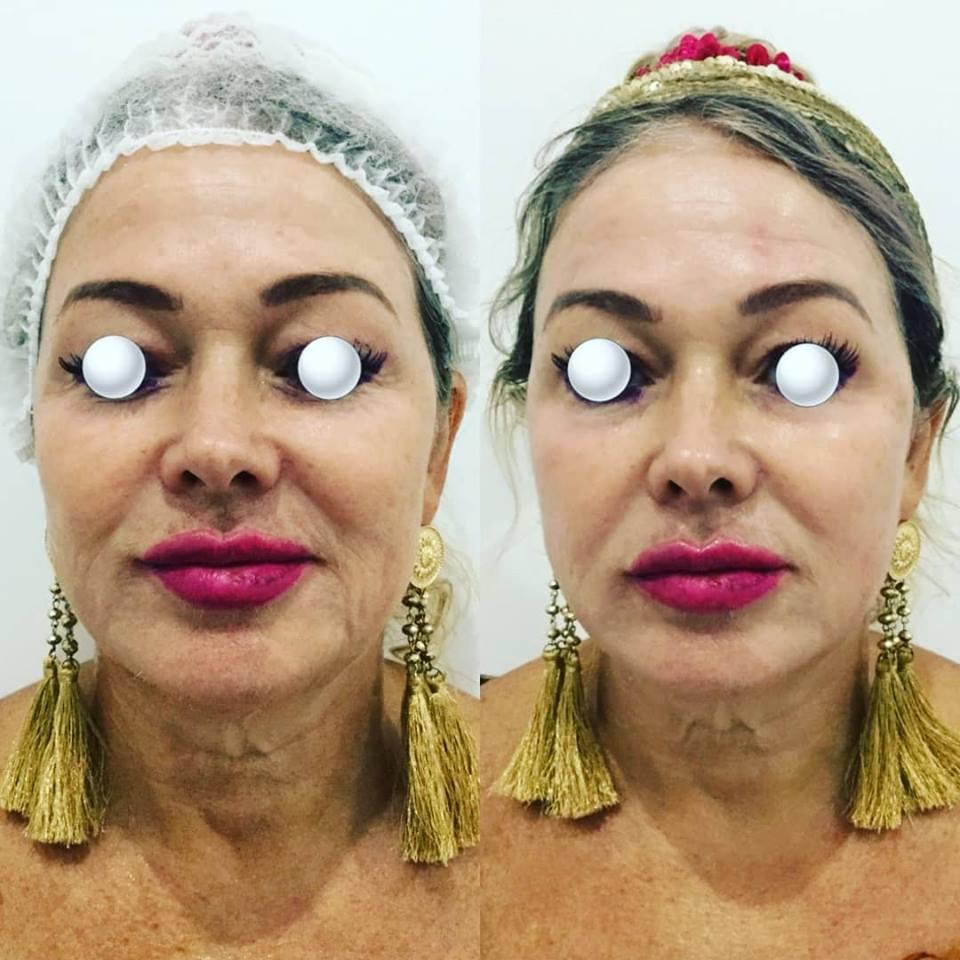 Hifu Facelift | Gold Coast | Pure Skin Plus Clinic