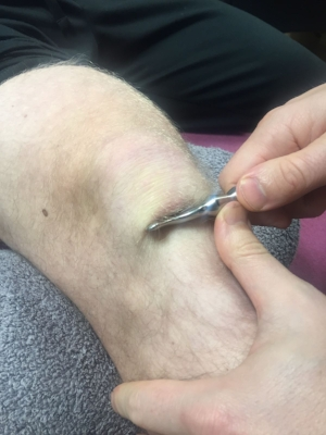 IASTM Tooling around the knee at Physio Effect