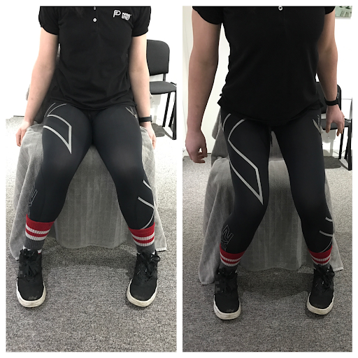 Poor movement pattern with Sit to Stand and Step-Ups fig.1