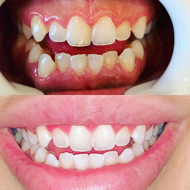 Get your teeth summer ready with instant Teeth whitening @beautifulbrightsmile