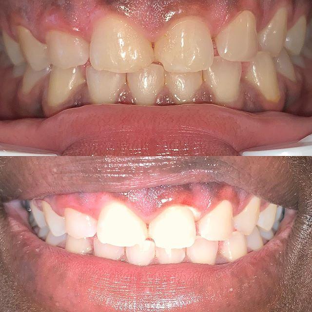Teeth whitening 👆🏼👆🏼 @beautifulbrightsmile