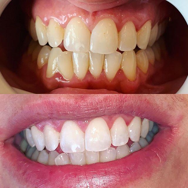 Teeth whitening in one hour @beautifulbrightsmile