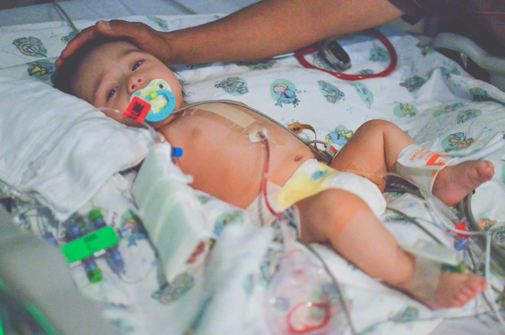 baby boy after open heart surgery