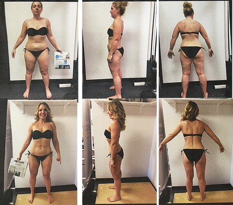 """Michelle Moneck's12 Week Body Transformation - 1st Place 2017 """"Best of the Burgh""""August 2013, I was 145 lbs. and in shape. After that Summer, I was traveling for work and spending time with people that were not positive influences. I was drinking and eating to cope with stress and depression and found myself the victim of toxic relationships. I started to gain weight and people told me I would never be in shape again. I was in such a weak mindset, I started to believe it. December 2015, I was 188 lbs. My trainer Shelby was very concerned about my well-being. Shelby got me out of a dark place and got me on track with my food and exercise. I was no longer starting my diet every Monday.December 2016, I was 162 lbs. Shelby referred me to Stasi Longo. Shelby was trained by Stasi and said, """"Do every single thing Stasi tells you to do."""" During my first workout with Stasi, I was in shock. While on the leg press, Stasi held this picture of my behind to motive me and it worked. My mind was back in the game and my body was responding. I ignored people that told me I would never make it 12 weeks. Well, I made it 12 weeks, no cheat meal or alcohol and lost 19% body fat. This transformation brought me back to a place I never thought I would be again with my body and mind. I stand here today at 145 lbs. and in the best shape of my life."""