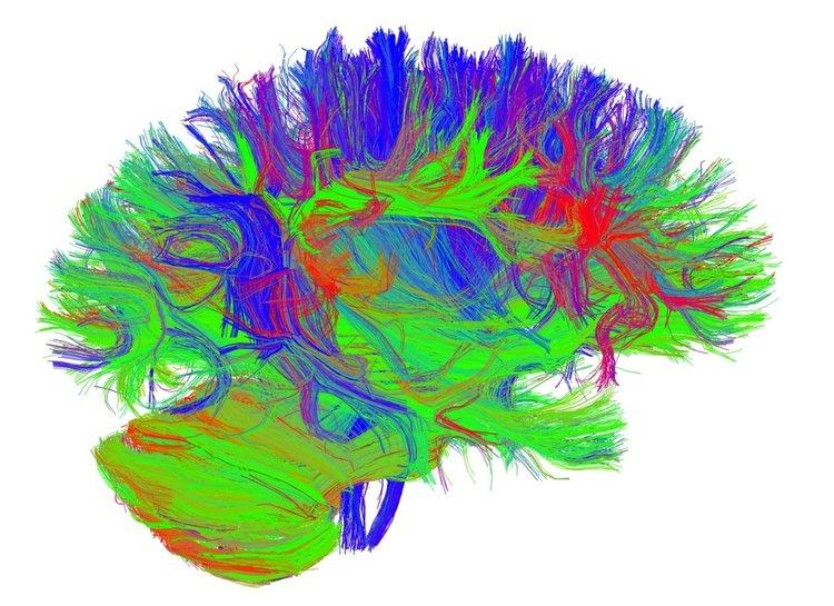 tensor+brain+imaging.jpg