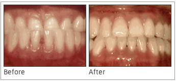 Underbite: Lower Front Teeth in Front of Upper Teeth - This problem results when the lower front teeth come up in front of the upper front teeth, which causes a sort of reverse smile. Not only is this problem aesthetically unappealing for those who experience it, but they can also go through a significant amount of pain as a result. Braces can correct both of these struggles.