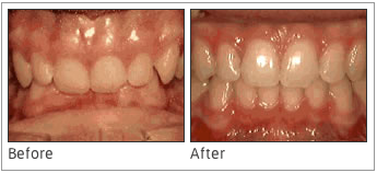 Deep Overbite: Lower Front Teeth bite into Palate - This issue is one that results when the lower front teeth bite into the palate, and the issue can grow progressively worse with age. Teenagers and young adults who ignore this problem may find that they need surgery to fix it in the future.
