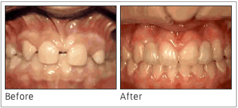 Missing Lateral Incisors - In this case, certain teeth are missing from the mouth. The braces can help to bring the other teeth into the right positions. After that, the lateral incisors are implanted into the mouth to produce a full smile.