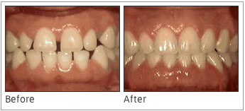 Spaces In-Between Teeth - Some people have spaces in-between their teeth that are too large, and braces can help to close up those spaces. On top of that, some patients will wear glued-in retainers to ensure that the spaces do not open up again.