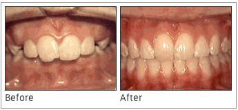 Overjet: Protruding Front Teeth - When you have front teeth that protrude out, that is called an overjet. Sometimes, the process to repair this issue includes two phases. One phase may help the jaw to grow properly, and the other can assist in aligning the teeth.