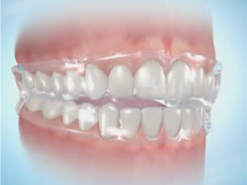Positioner - This appliance is occasionally used after the braces come off. If you had an openbite tostart with and your teeth are prone to relapsing, we will use the positioner as a retainer.Or if you are a boxer.