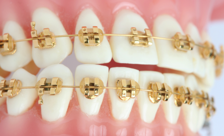 Gold-Braces-in-Virginia.png