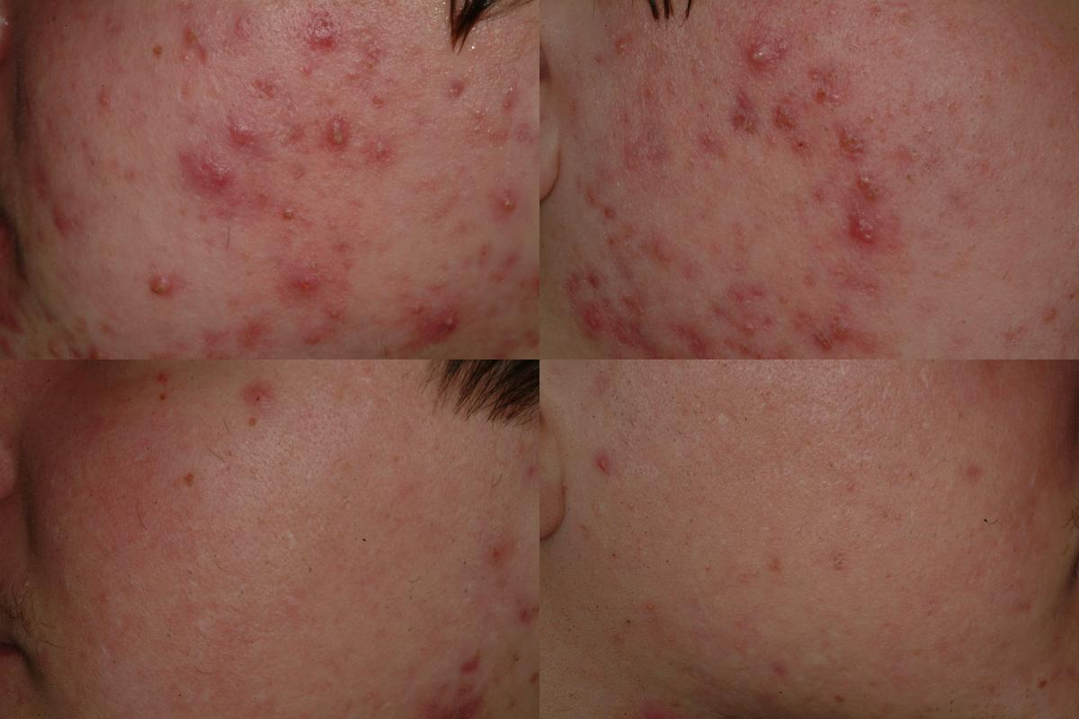See our amazing results in this patient's image from a recent PLDI clinical trial!