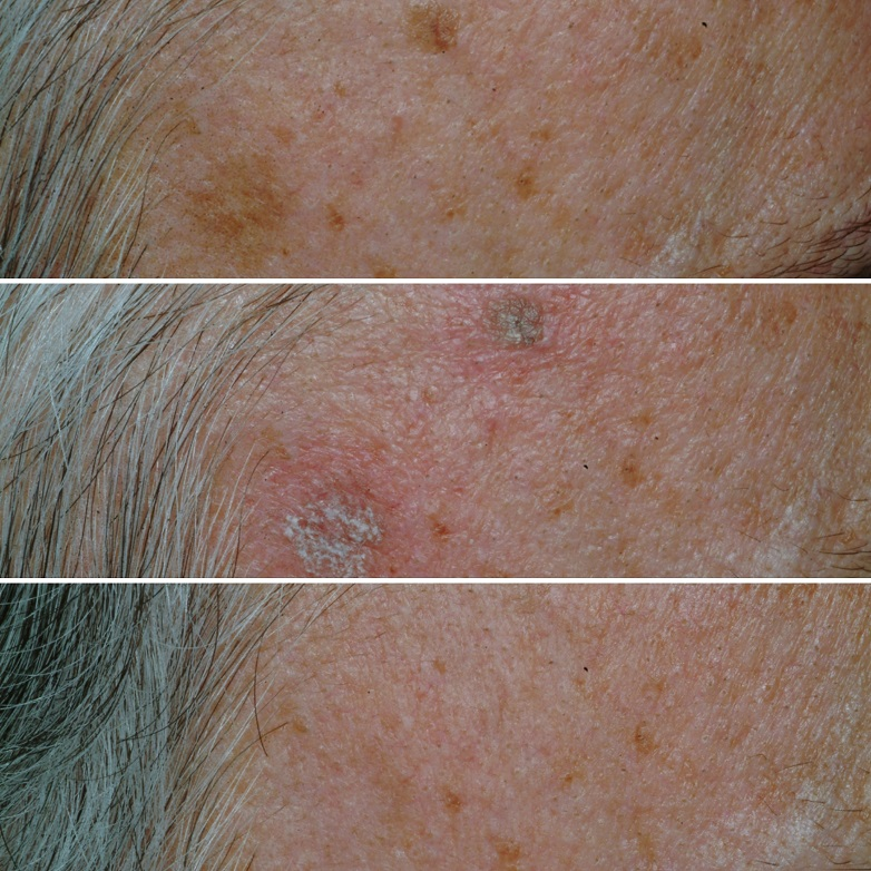 Two age spots (lentigines) before, immediately after, and 6 weeks after laser treatment with complete clearance.  Immediately after laser treatment, the treated spots can turn white or grey. This lasts for a few hours and then over the following few weeks, the brown spot will start to fade.