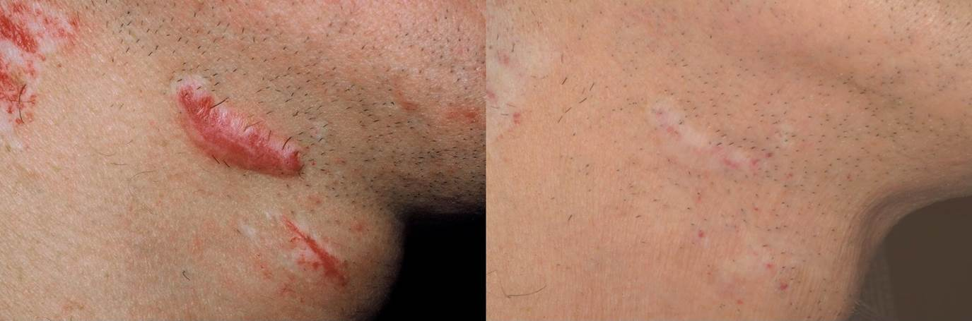 Great improvement of hypertrophic and keloid scars with a series of laser treatments.