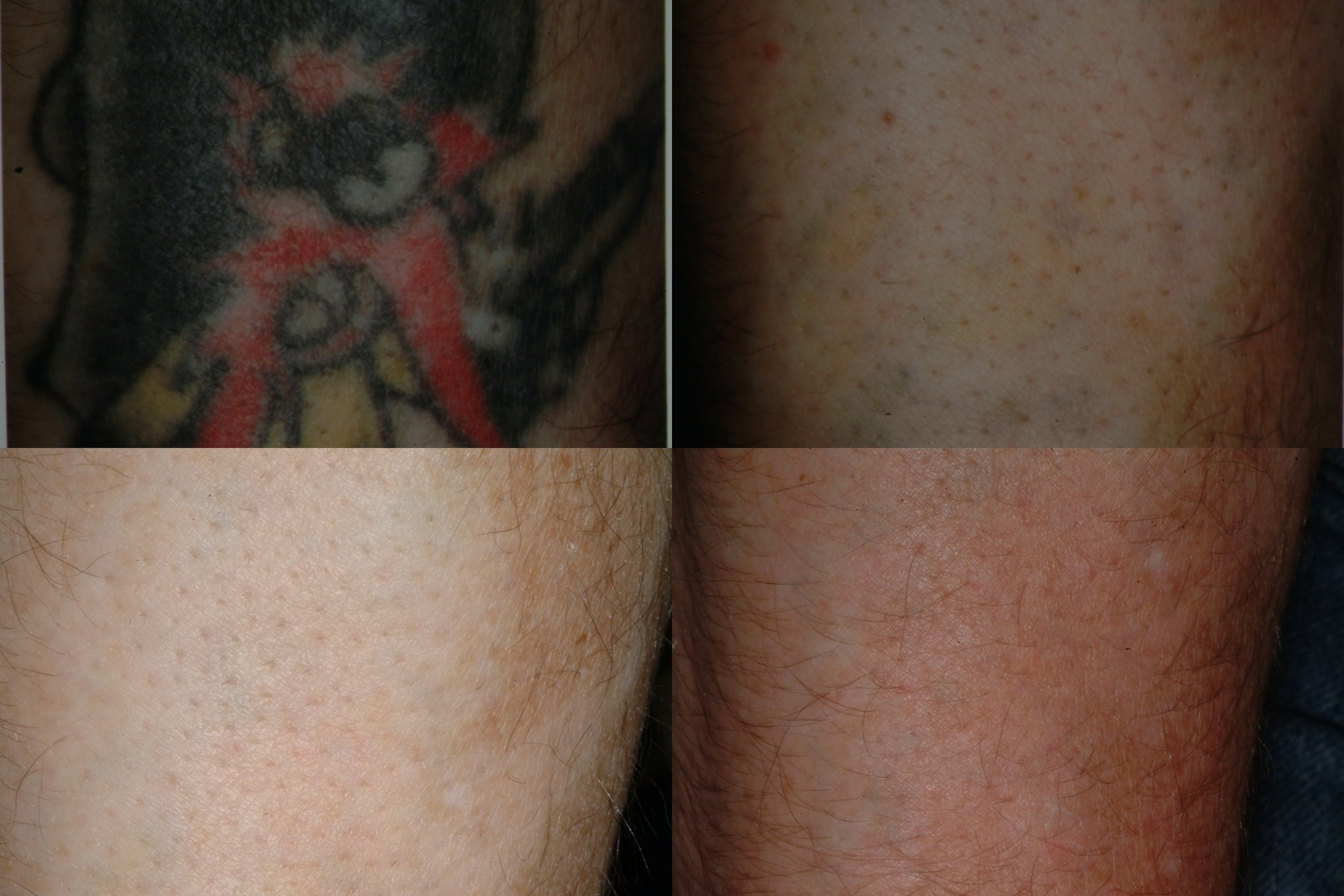 This tattoo is much more complicated, as it contains multiple colors and heavily pigmented. We initially used 3 laser systems to fade most of the color over 5-6 sessions. Then the patient underwent a number more sessions with a different laser system to improve the result and help it fade more naturally into the surrounding skin.