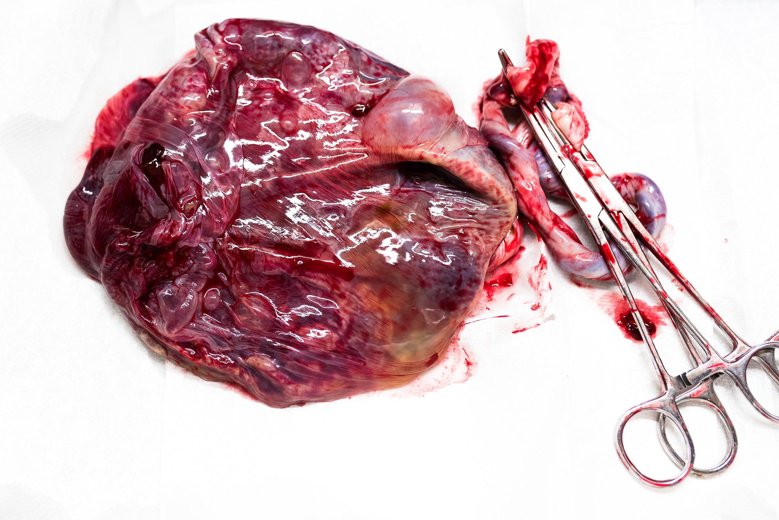 placenta on white background