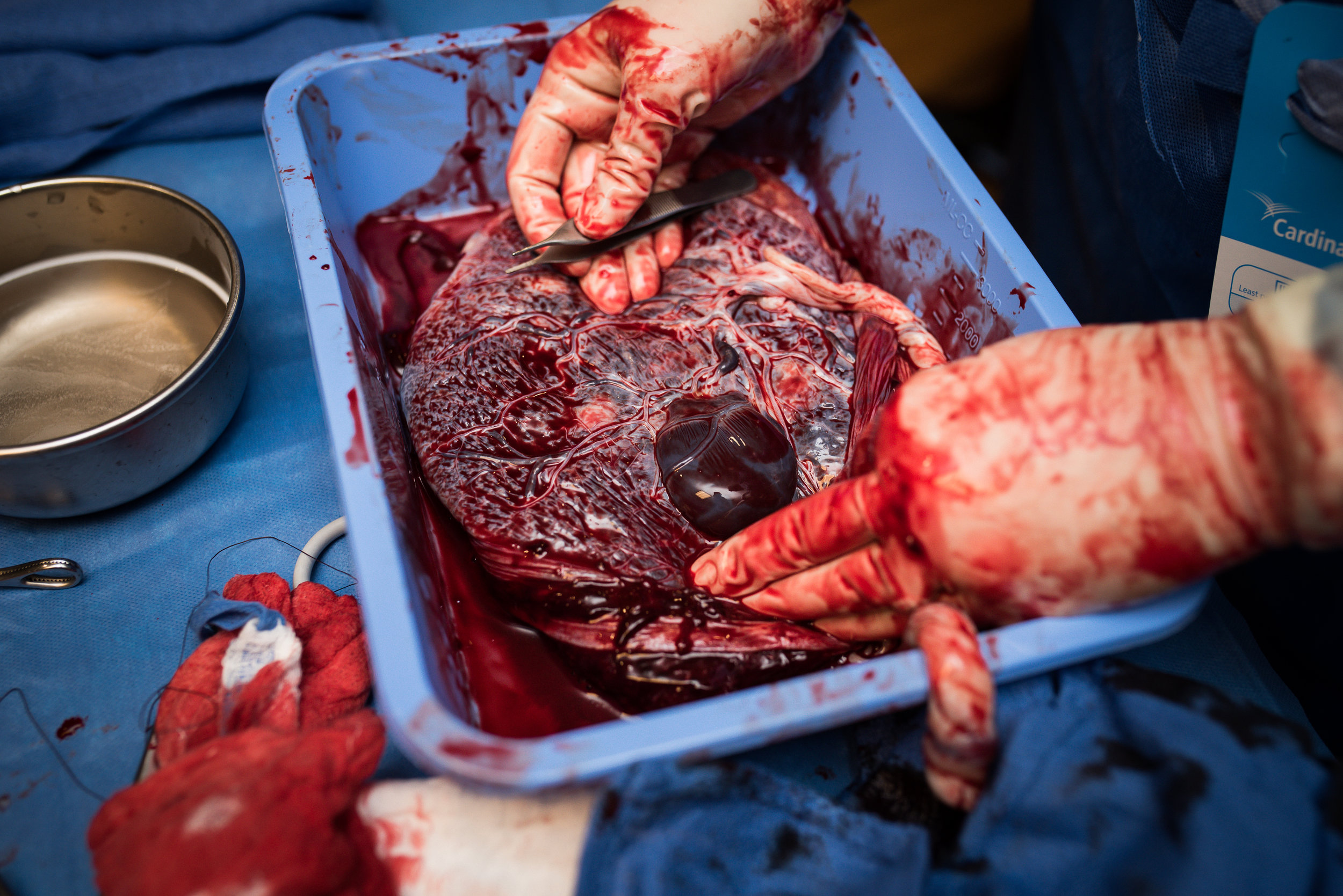 Placenta with blood bubble