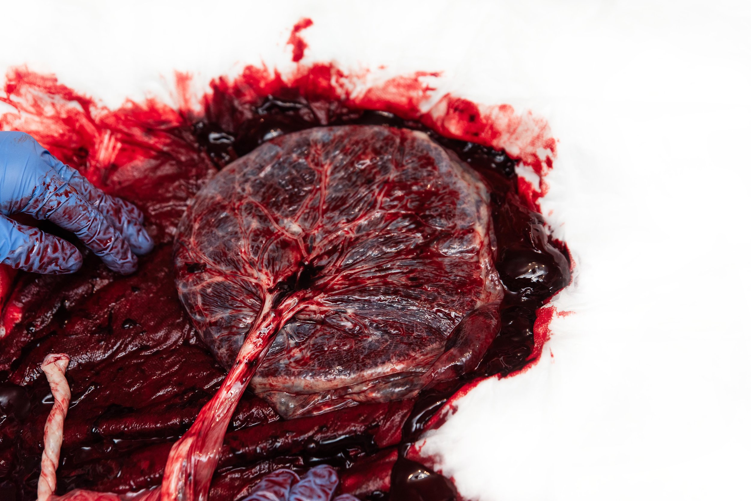 placenta being examined