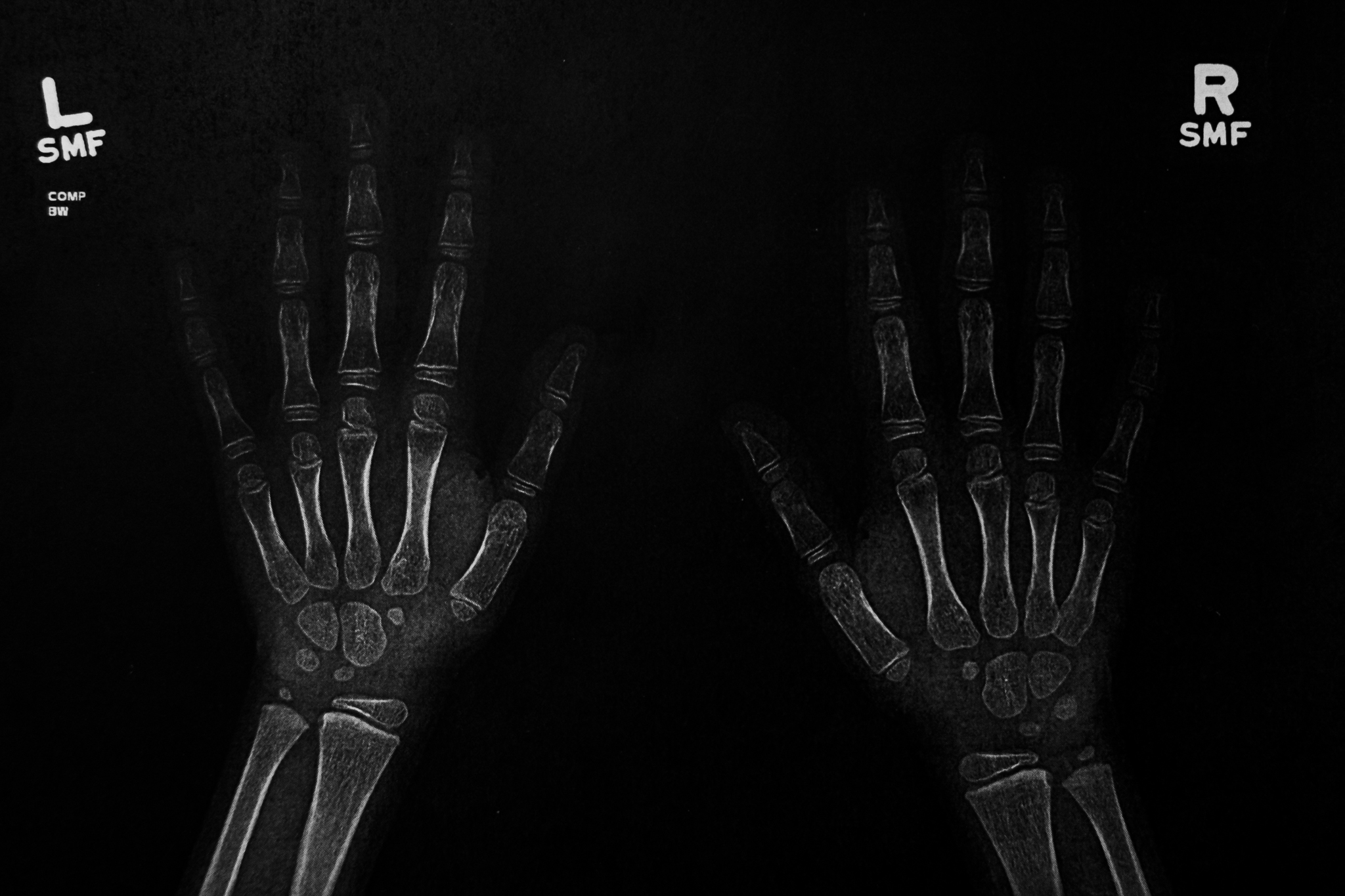 xrays of hands