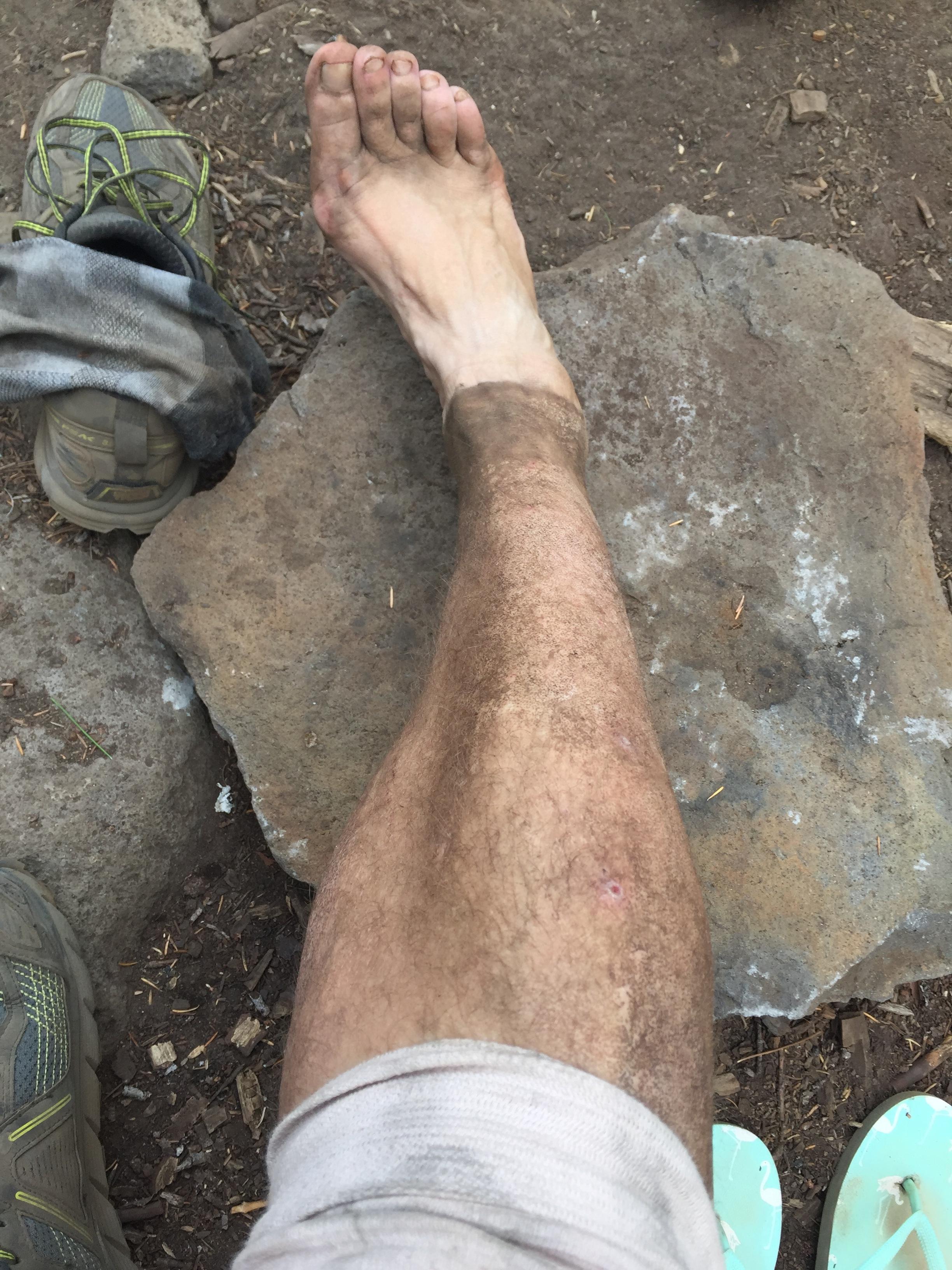 Dirt Leg -