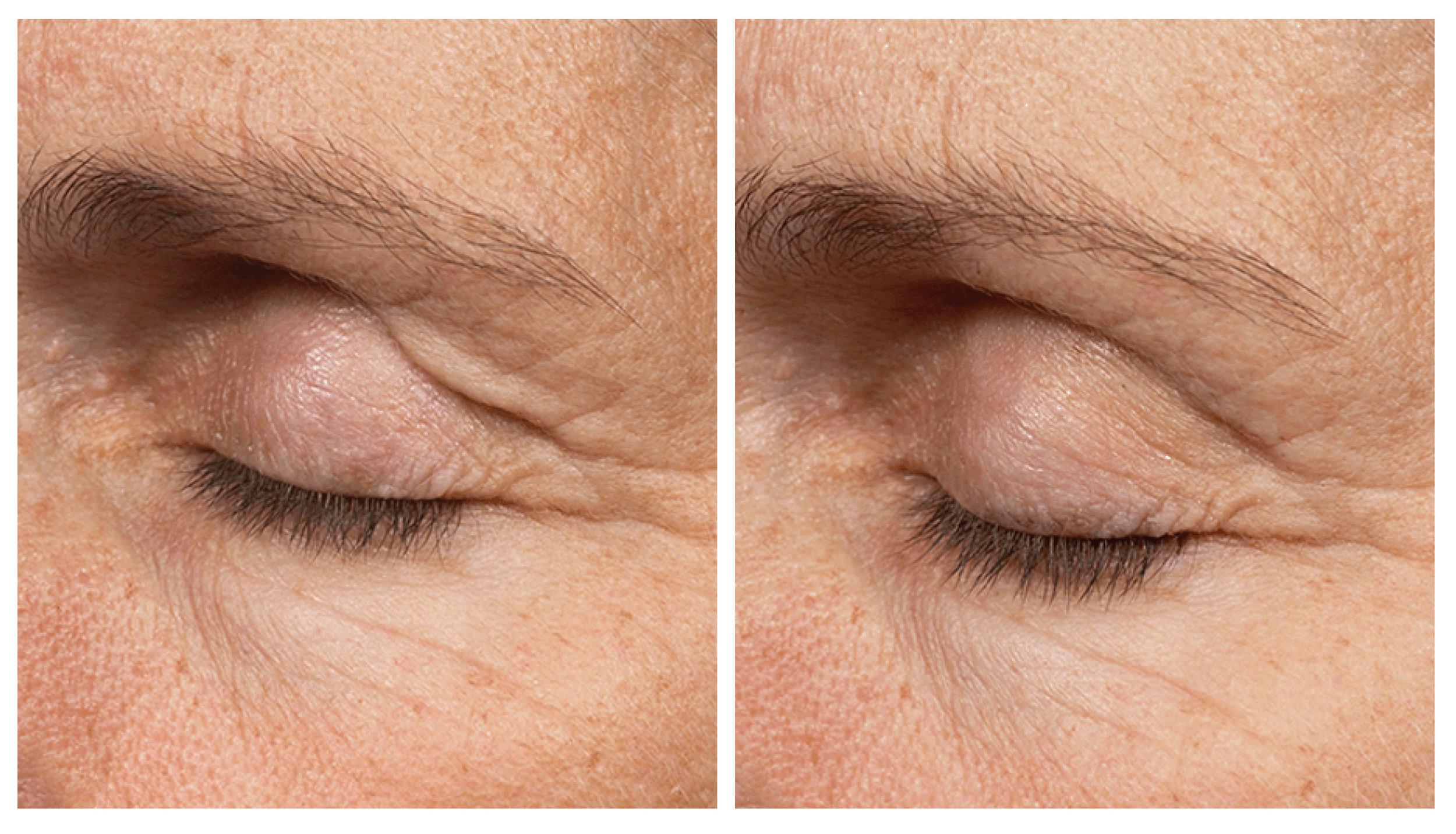 eyelids.jpg