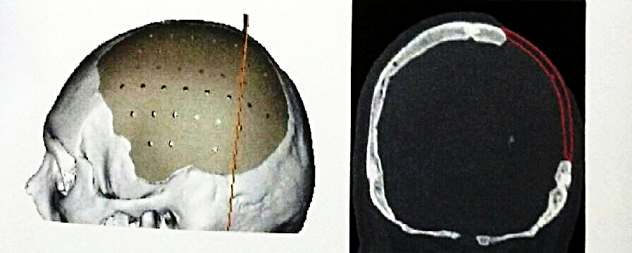 Cranioplasty - Reconstruction of the cranial vault after acute insult such as traumatic brain injury or stroke often occurs in delayed fashion. Our preference is to use native or autologous bone for cranioplasty. In cases where this is not available, we have utilized titanium mesh and sometimes even custom made 3D printed PEEK implants. Click below to read Jesus' story who suffered from severe TBI and underwent a decompressive craniectomy followed by a native bone cranioplasty.