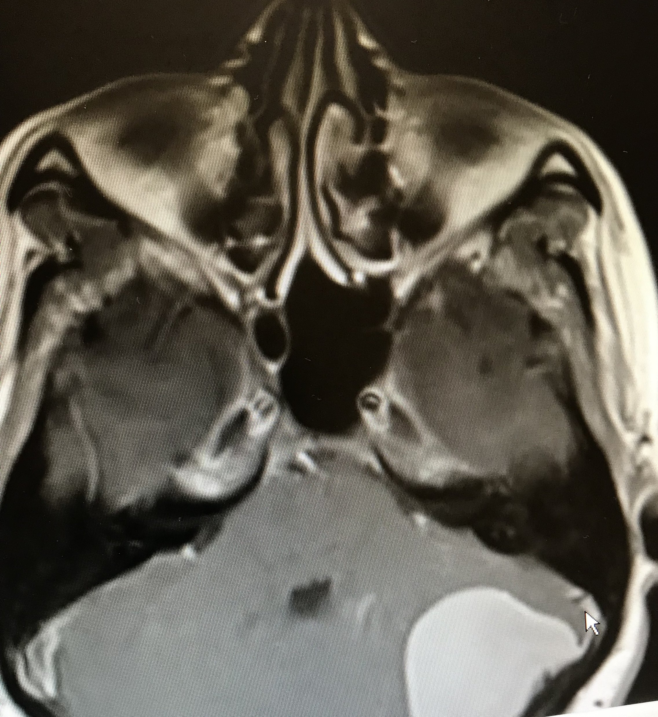 Brain Tumors - We treat meningiomas, gliomas, pituitary adenomas, vestibular schwannomas, and metastatic brain tumors utilizing tools such as tractography, frameless stereotactic navigation, evoked potentials, and endoscopic methods when appropriate.