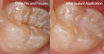 Before and after Dental Fissure Seals for preventative dentistry