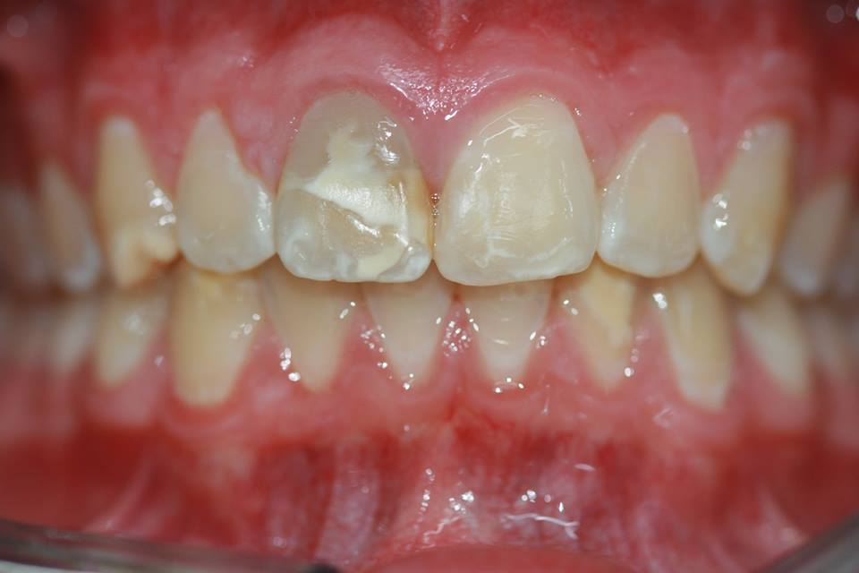 Before dental filling - chipped, broken and demineralised tooth