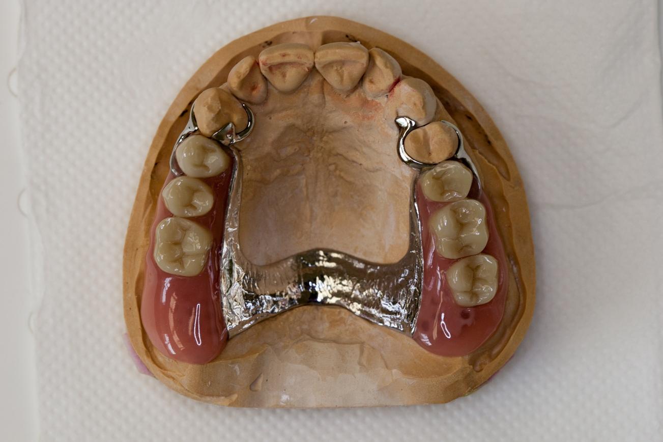 Partial upper cobalt chrome denture - false teeth, dental plate