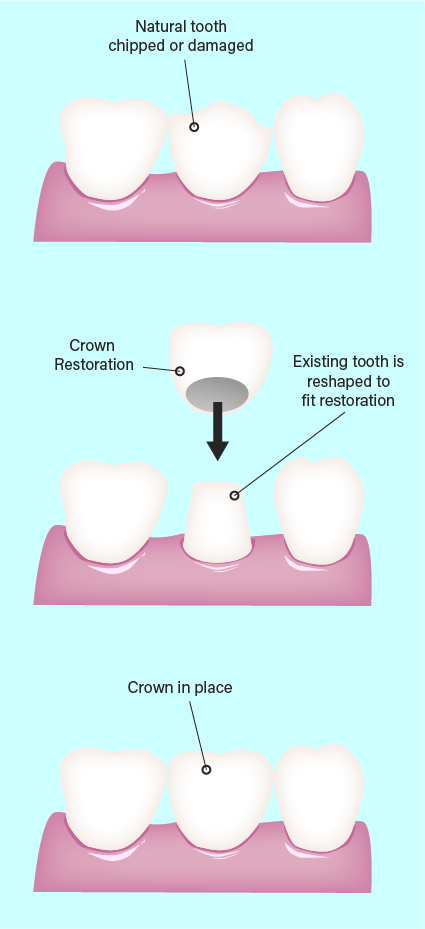 Why do we need a dental crown or bridge?