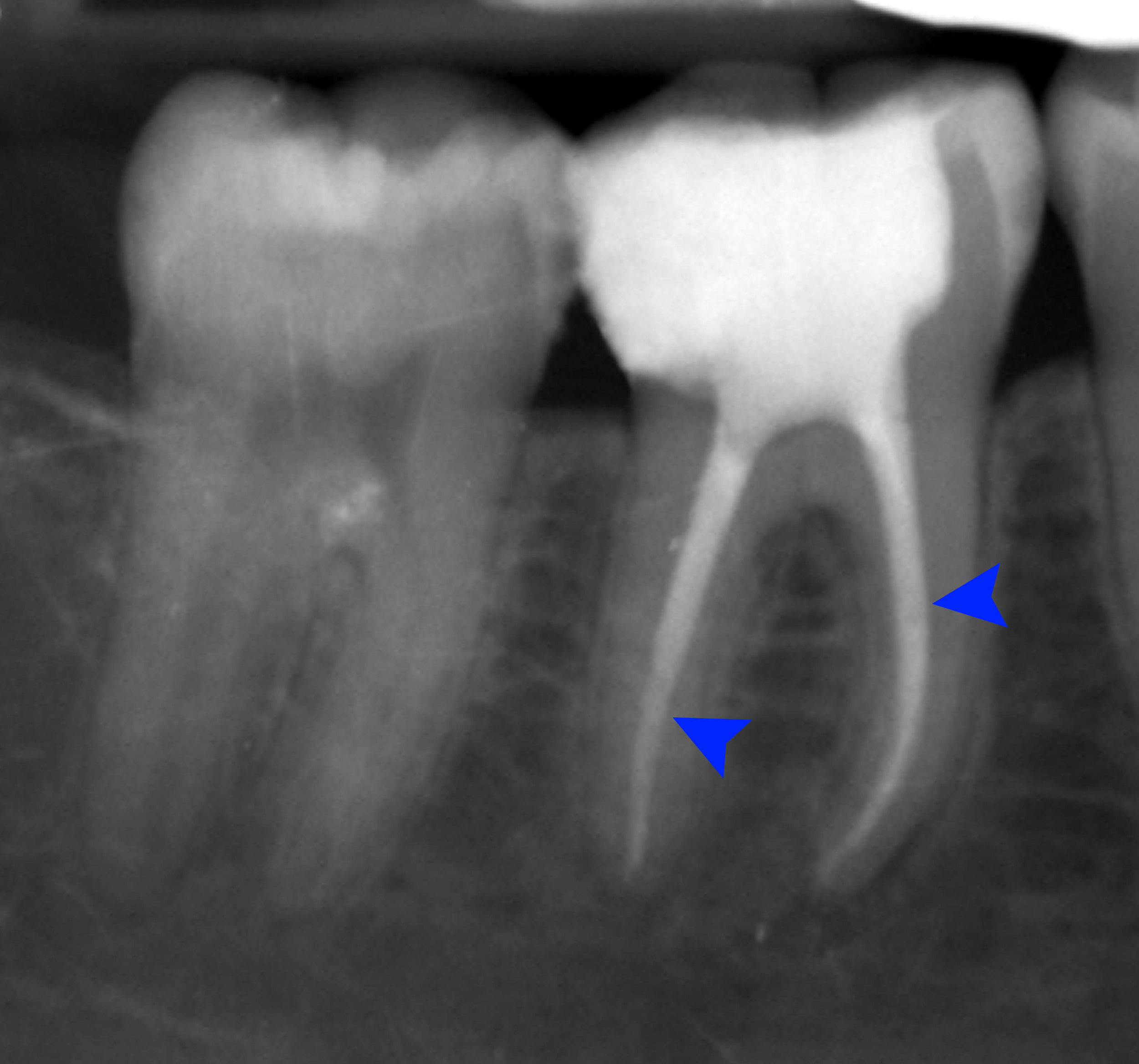 Dental Root canal treatment