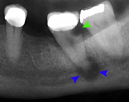 Dental Tooth abscess