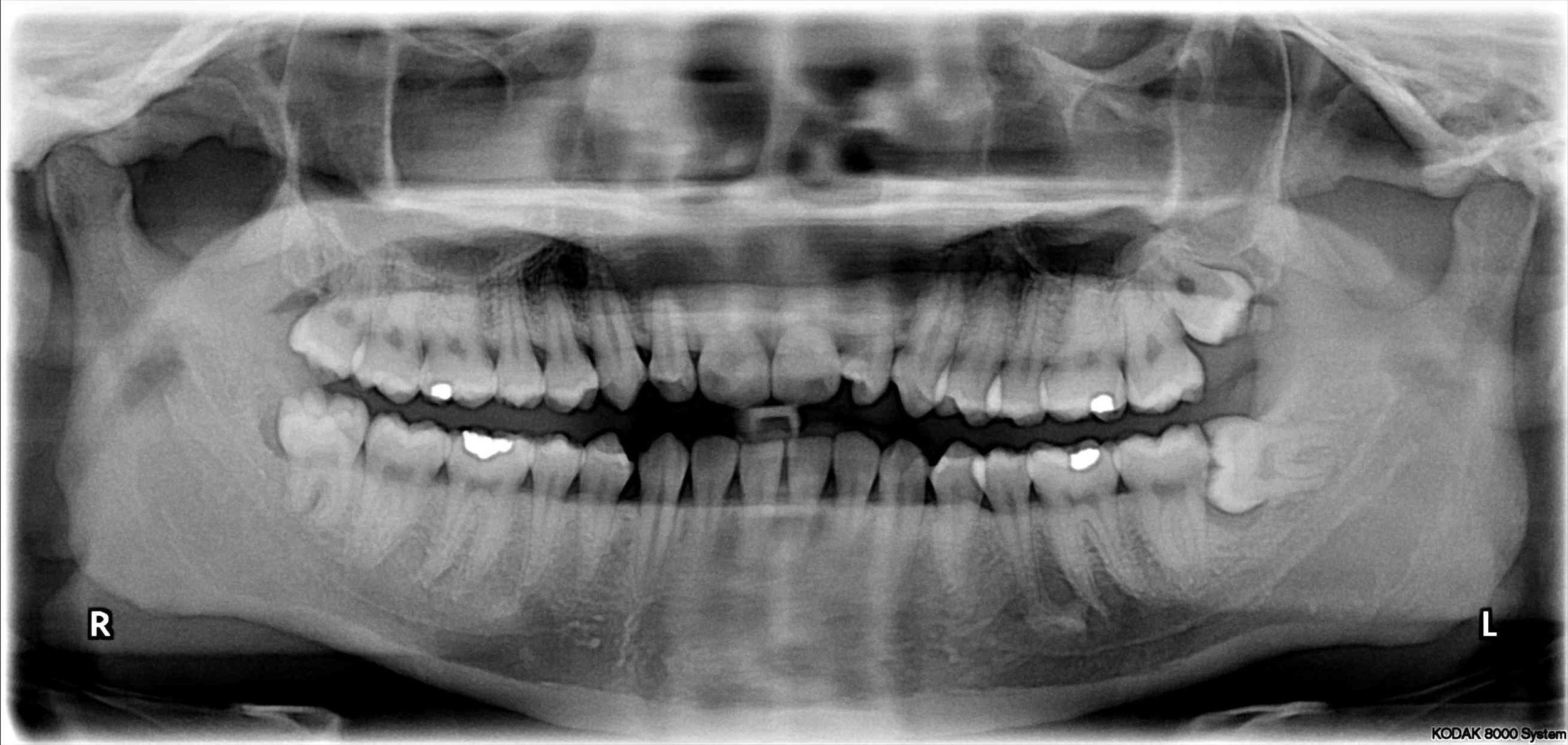 Dental OPG X-ray Impacted wisdom teeth