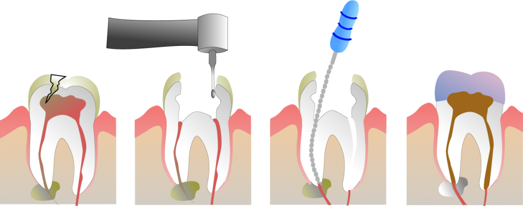Dental Root canal treatment step by step procedure