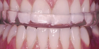 Bruxism - occlusal splint (night guard)