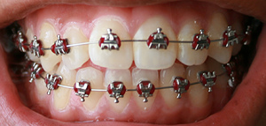 Dental Orthodontics - traditional braces