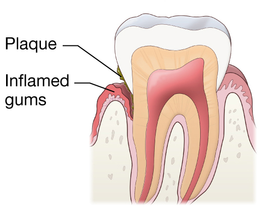 Plaque can get caught in the loose gum line between the tooth and the gums. Gently brush into these areas with your toothbrush
