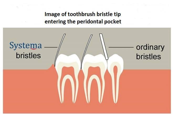 Systema Toothbrush Bristles